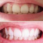 歯のオールセラミッククラウンとラミネートベニヤについて